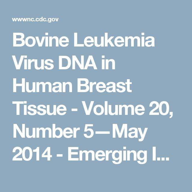 Bovine Leukemia Causes Breast Cancer