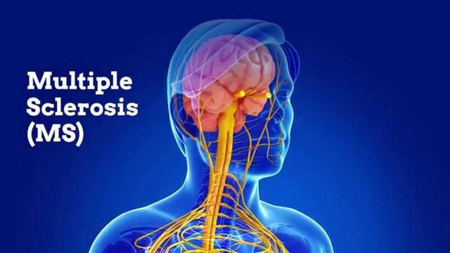 Dairy causes Multiple Sclerosis